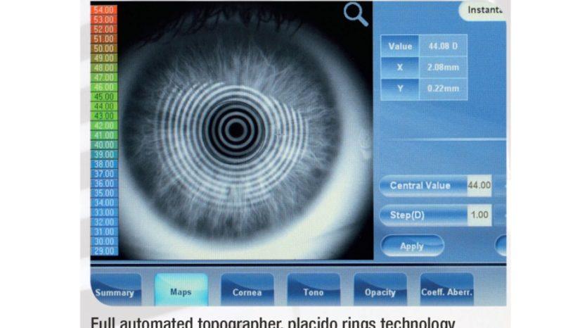 Stacja diagnostyczna VISIONIX VX220 /WF/TOPO/TONO/PACHY full