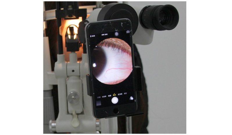 Adapter obrazowania oka do smartfona CTA-300 full